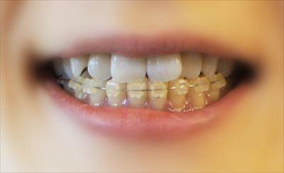 尼崎の歯医者なら審美性に優れた矯正・義歯の治療が受けられる【南林歯科クリニック】へ